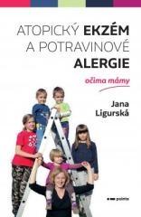 Jana Ligurská: Atopický ekzém a potravinové alergie očima mámy. Klikněte pro více informací.